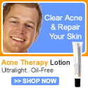 MenScience Acne Therapy Lotion